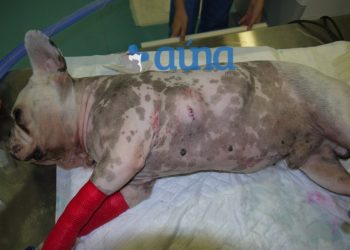 Cirugía resección pared costal 1