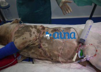 Cirugía resección pared costal 25