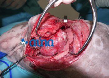 Cirugía resección pared costal 9